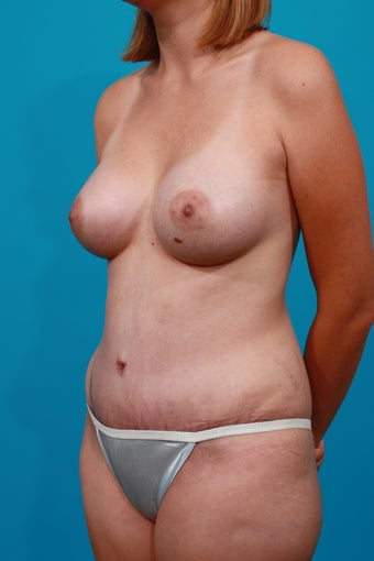 Mommy Makeover - Breast Augmenation and Tummy Tuck after 132936