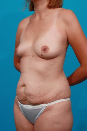 Mommy Makeover - Breast Augmenation and Tummy Tuck before 132936