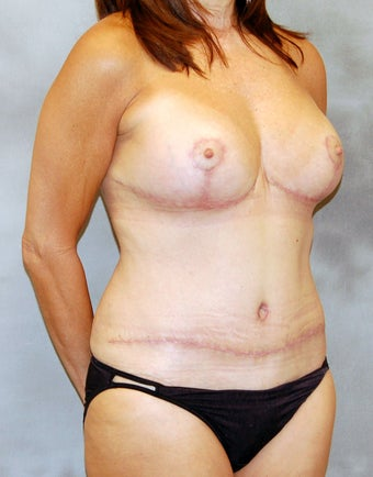Mastopexy and Abdominoplasty after 525552