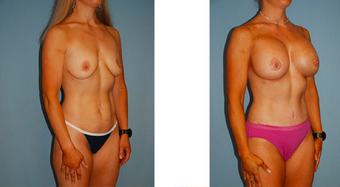 Tummy tuck, breast lift with implants, liposuction before 307053