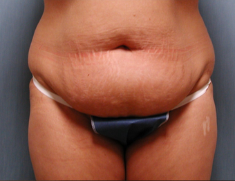 Mommy Makeover- Tummy Tuck and Breast Augmentation before 409607