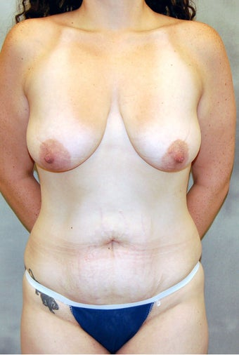 Abdominoplasty and Mastopexy with Implants before 524810