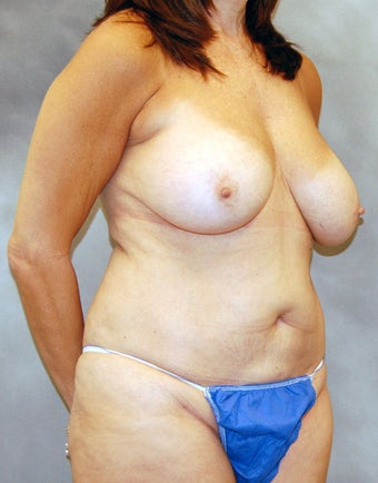 Mastopexy and Abdominoplasty before 525552