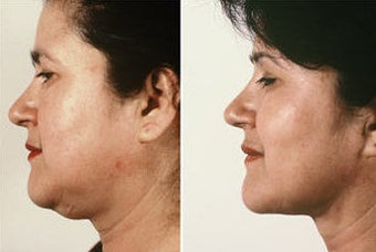 Necklift with Jowl Liposuction before 69080