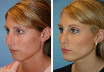 Chin Implant, Rhinoplasty before 91944