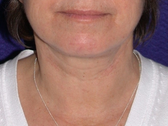 Necklift after 208443
