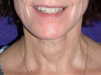 Necklift after 208444