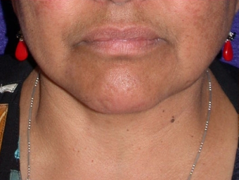 Necklift after 208453