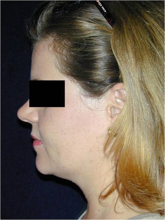 Neck Liposculpture before 312661