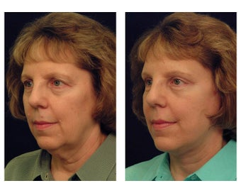 Lower Facelift and Neck after 346983