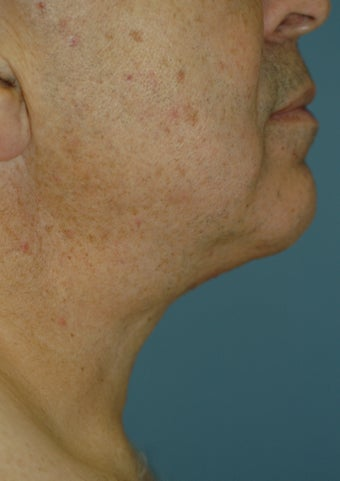 Neck Lift after 537398
