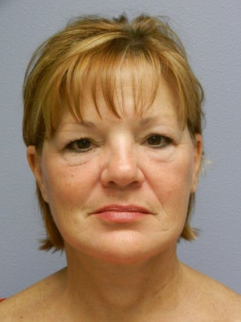 Lower Face with Neck Lift after 574623