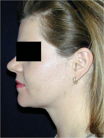 Neck Liposculpture after 312661