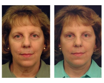 Lower Facelift and Neck before 346983