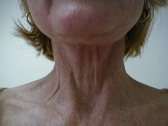 Neck lift before 593722