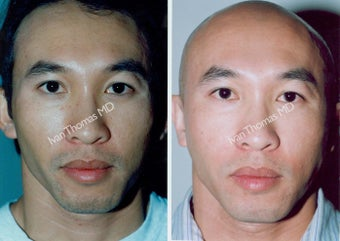 Non-Surgical Face Lift- Exoderm  before 242996