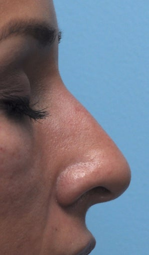 Non Surgical Rhinoplasty after 407867