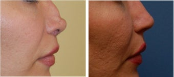 Non-Surgical Rhinoplasty before 334250