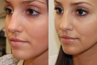 Non-Surgical Rhinoplasty and Lip Augmentation with Silikon-1000 before 388358