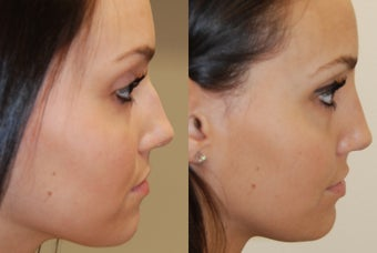 Non-Surgical Rhinoplasty with Silikon-1000. 3 treatments before 388359