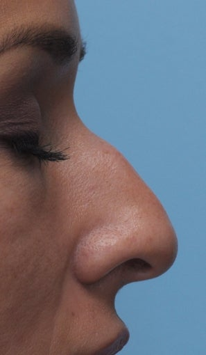 Non Surgical Rhinoplasty before 407867