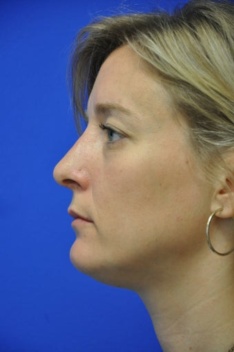 Nasal airway surgery with cosmetic improvment after 478783