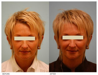Injectable Fillers (Restylane/Perlane) before 136776