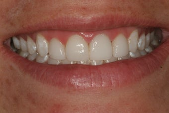 Simple Smile Design with gum lift and porcelain veneers after 92911