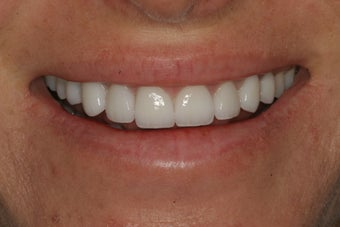 Smile Makeover with Minimal-Prep and No-Prep Veneers after 94817