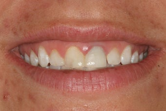 Simple Smile Design with gum lift and porcelain veneers before 92911
