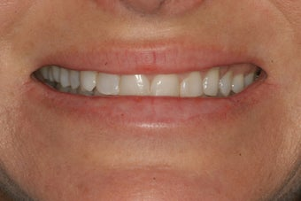 Smile Makeover with Minimal-Prep and No-Prep Veneers before 94817