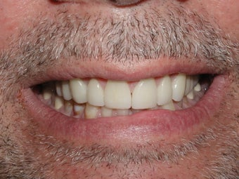 Porcelain Veneers after 361878