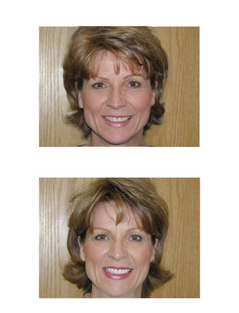 Cosmetic Dentistry- Veeners and Teeth Whitening