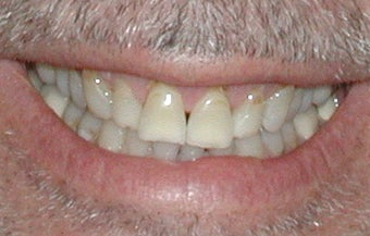 Porcelain Veneers before 361878