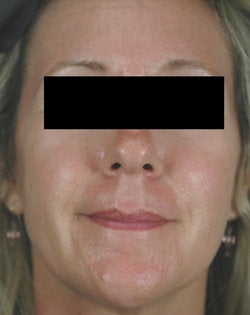 Pulsed Dye Laser Treatments for Rosacea after 104196