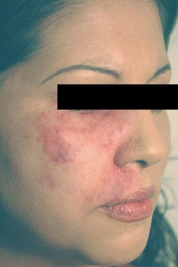 Port Wine Birthmark Removal with Pulsed Dye Lasers after 104204