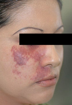 Port Wine Birthmark Removal with Pulsed Dye Lasers before 104204