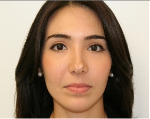 Facial Rejuvenation with Soft tissue fillers after 414179