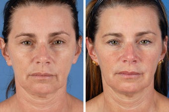 Radiesse & Botox Cosmetic before 356479