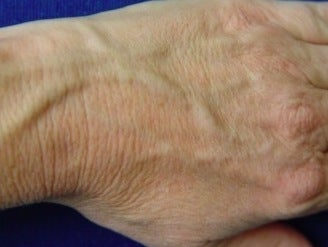 Radiesse hand rejuvenation before 374252