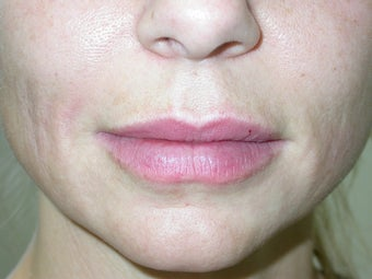 Filler -lip augmentation and smile line treatment after 114665