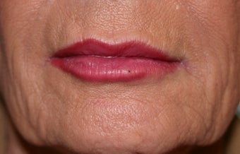 Restylane filler to the lips after 240875