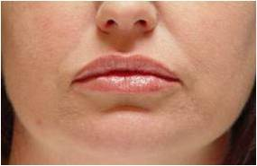 Lip augmentation after 251711