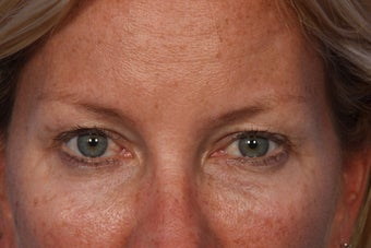 Restylane to Tear Trough (under eyes) after 308308