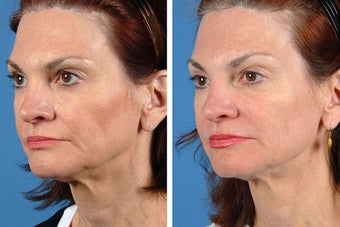 Fillers and Botox Cosmetic after 356475