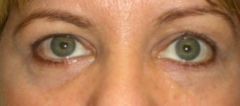 Restylane for eyes after 374299