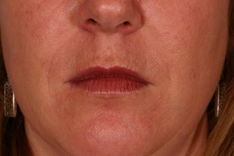 Restylane treatment after 88696