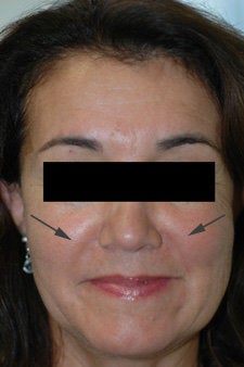 Restylane treatment for laugh lines   after 91057