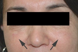 Restylane injections for cheek augmentation after 91629
