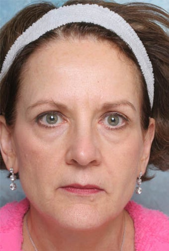 Undereye Deepfill Restylane® and Perioral Perlane® before 119379